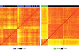 橙色图案是由自闭症患者脑组织中的化学标记产生的。