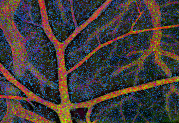 Cerebellum brain cells, light micrograph.