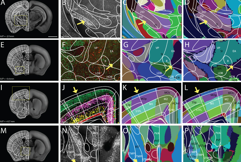 Grid of views of mouse brain: 3D and areas mapped in color