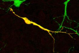 小鼠脑中的神经元突出显示绿色和黄色