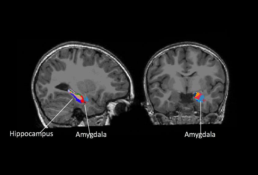 Enlarged amygdala may forecast anxiety, depression in ...