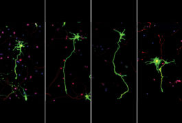 four panels show mouse neurons showing abnormalities