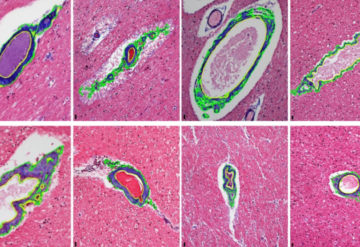 micrographs of blood vessels in the brain