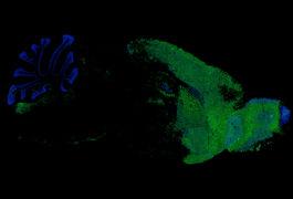 小鼠大脑的显微照片显示移植的人类小胶质细胞