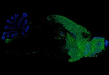 Micrograph of mouse brain showing transplanted human microglia