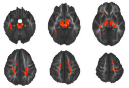 group of six brain images from children show white matter, anomalies shown in red areas