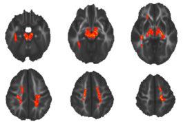 来自儿童的六个脑图像展示白种物质,在红色区域显示的异常