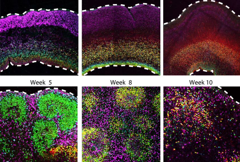 Brain organoid cells look different than those in embryonic brain tissue-grid of six images show growth of both types over time.