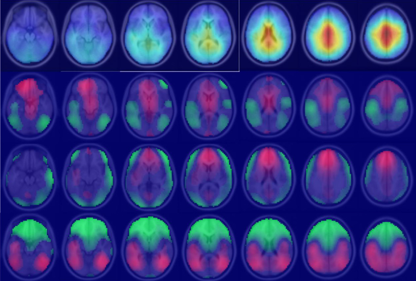 multiple brain scans showing brain activity during different tasks. Purple background and brains in pink, red and green tones indicate activity.