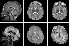 Brain scans showing differences between those with TBR1 mutations and controls.