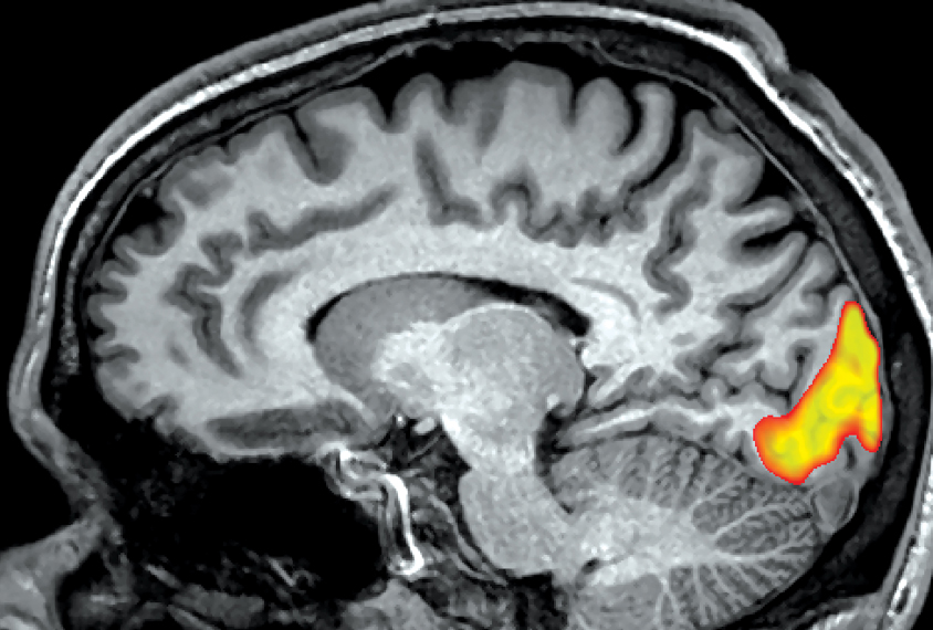 Side view of the human brain, area highlighted at the back of brain is activated by visual stimuli.