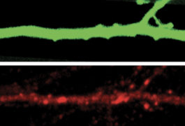Two neuron images compared side by side