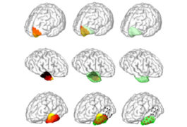 grid of brains with one area highlighted shows a potential source of a seizure