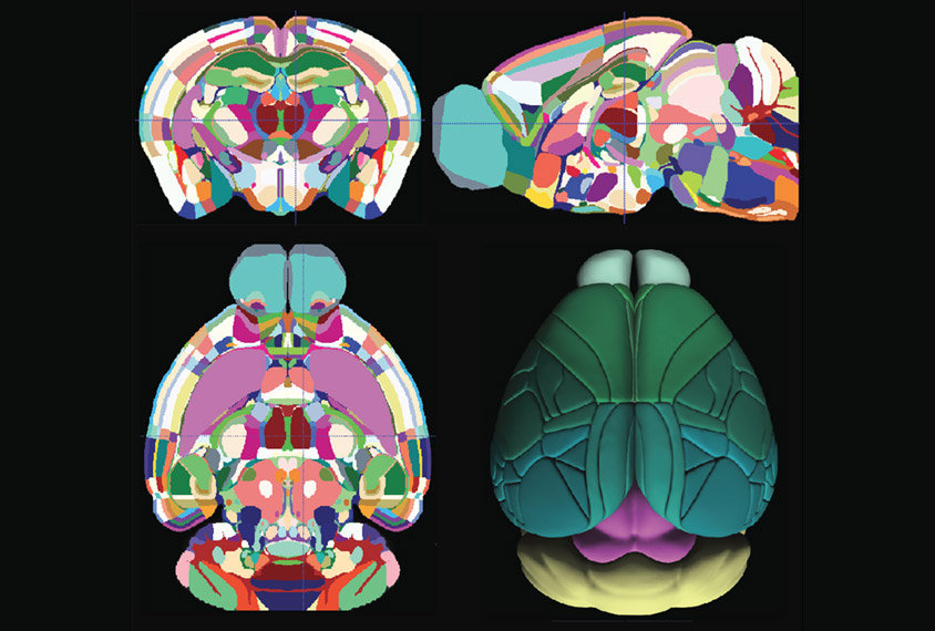four views of mouse brain