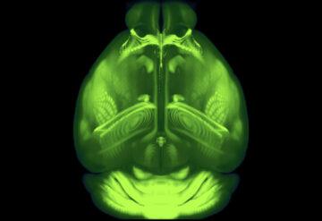 从上到下的鼠脑图