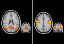 四个不同区域的大脑视图被点亮
