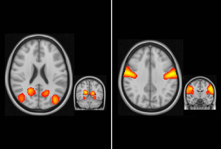 four brain views with different areas lit up