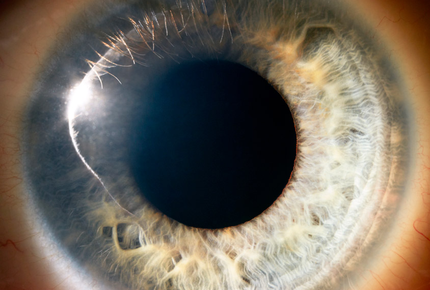 Eye 'jumps' in autistic people may be especially fleeting