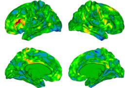 四组大脑视图