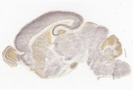 micrograph of a slice of mouse brain