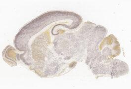 一片小鼠脑的显微照片