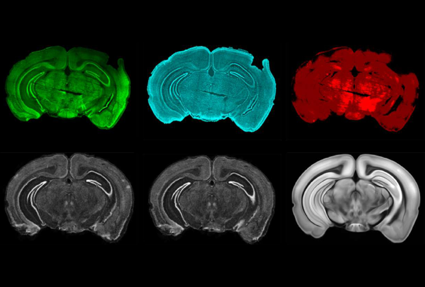 grid of six brain slices in different staining methods.