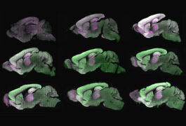 Mouse brain images show proteins in mouse brains at different ages.