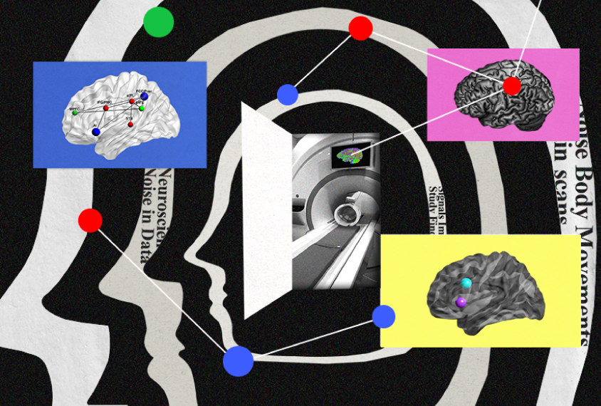 Collage showing head movements that create noise, an MRI machine, and brain images.