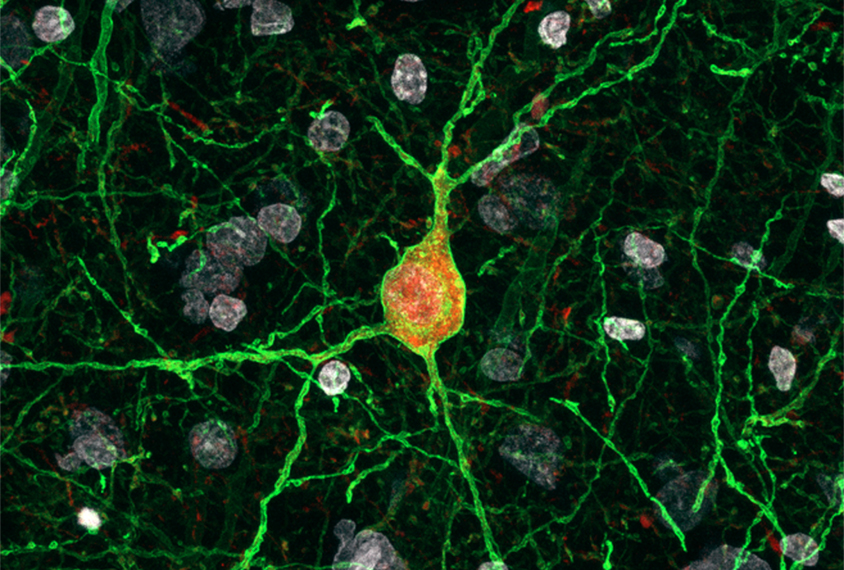 Neurons in a macaque cortex express parvalbumin in red.
