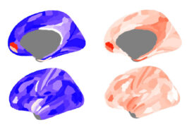 Brain images showing differences in signaling in autistic and normal brains.