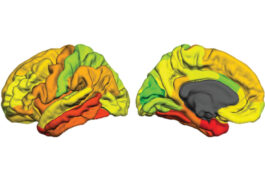 Brain hemispheres color-coded.