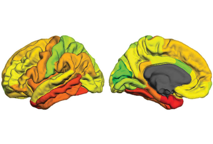 Brain hemispheres color-coded.