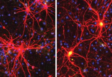 神经细胞的显微照片被CRISPR酶激活了Angelman综合征的沉默基因