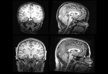 MRIs show changes over time