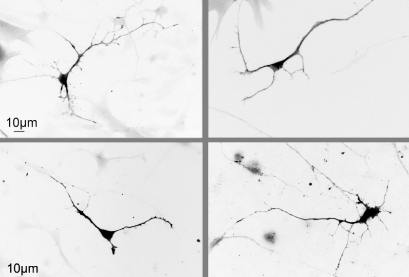 Neurons show structural changes, seen in black and white.