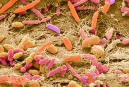 粪便细菌的扫描电镜。