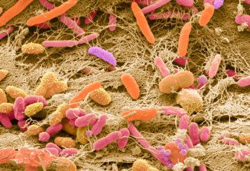 SEM of faecal bacteria.