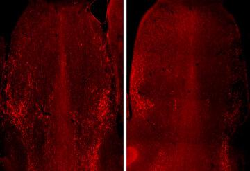鼠标脑切片以红色显示