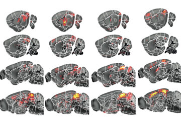 Mouse brains show different brain regions lighting up