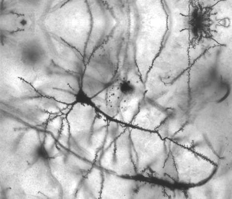 Human neuron fabric by lrosowsky on Spoonflower - custom fabric