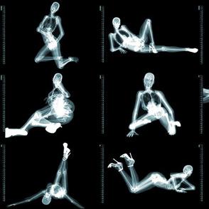 X-ray Pinups