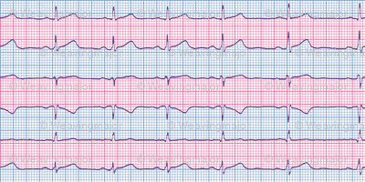 EKG:  a chevron from the heart (pink)