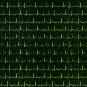 Heart Beat (ECG)