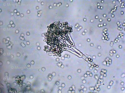 Penicillin #2