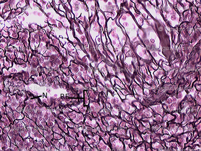 Reticular Connective Tissue Fabric Mamapeachykeen