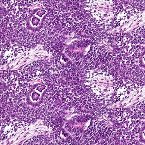 Wilm's Tumor