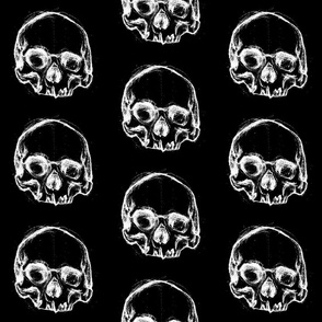 Skulls in My Head