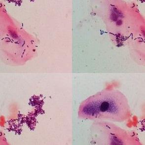 Epithelium Cells & Some Bacterium