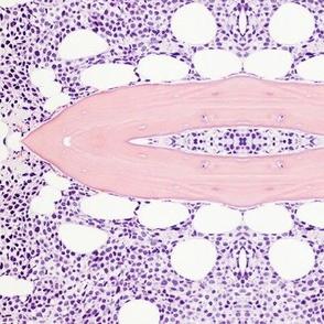 Plasma cell myeloma