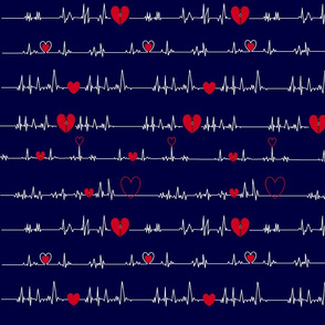 zipper OPEN HEART ekg